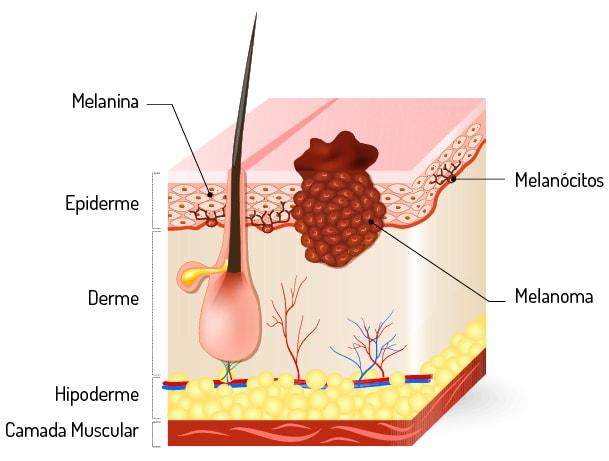 Melanoma - O que é o melanoma?