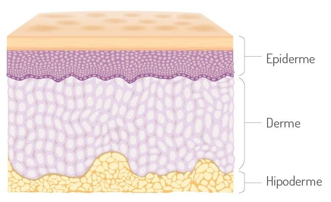 Melanoma - Camadas da pele