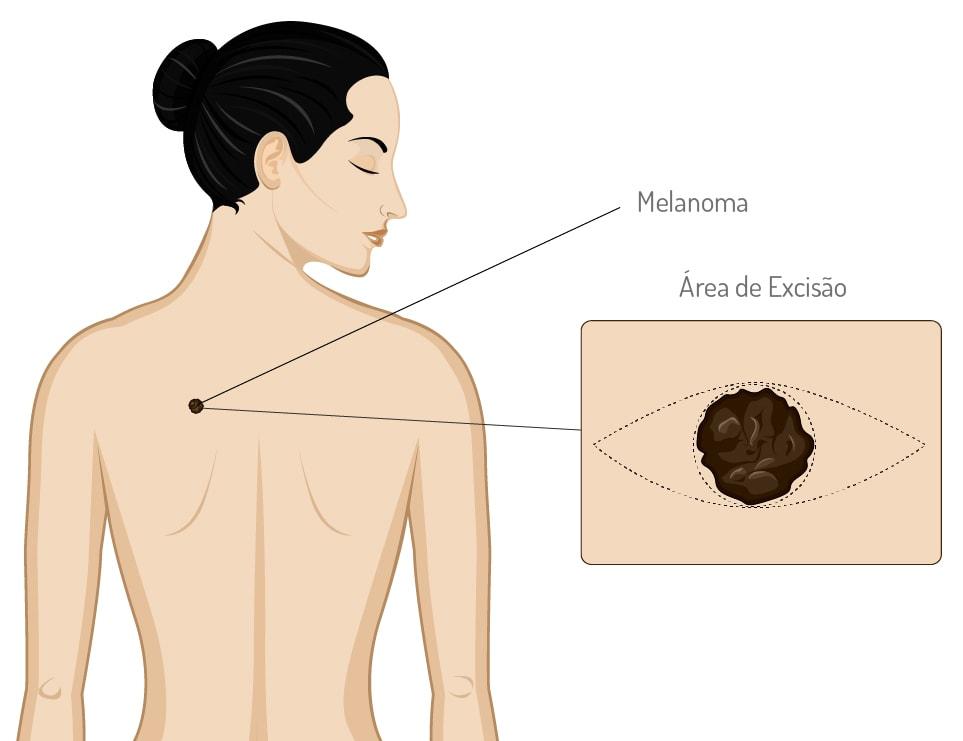 Melanoma - Informação básica - Tratamento de Melanoma