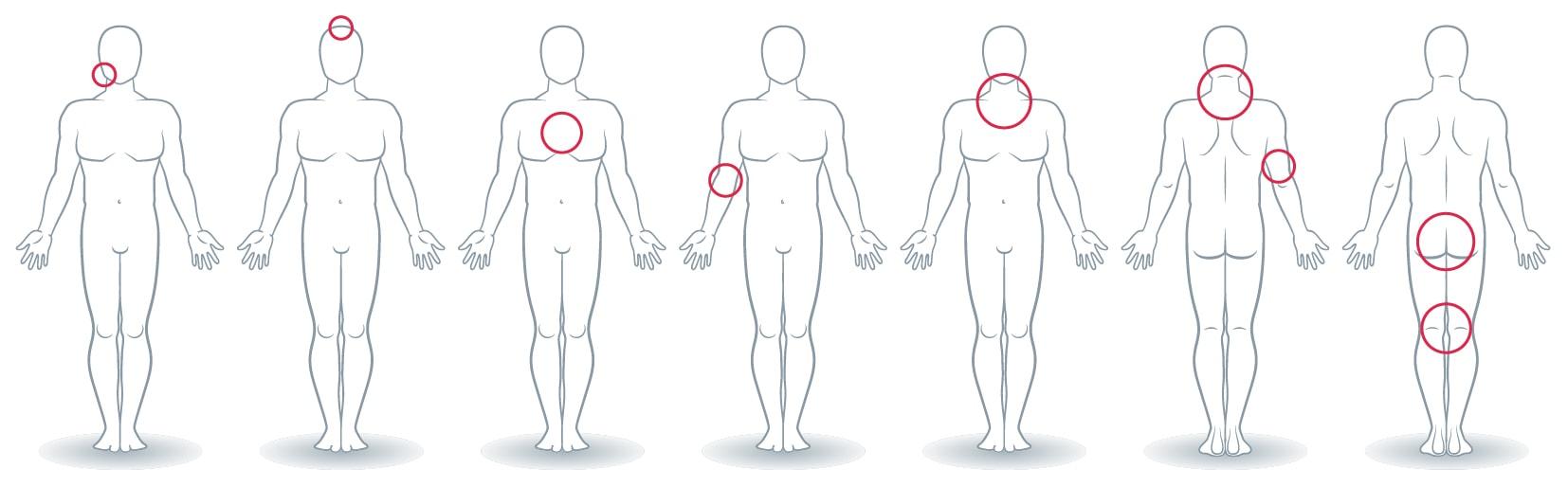 Melanoma - Conselhos úteis - Verificação e identificação de sinais e lesões