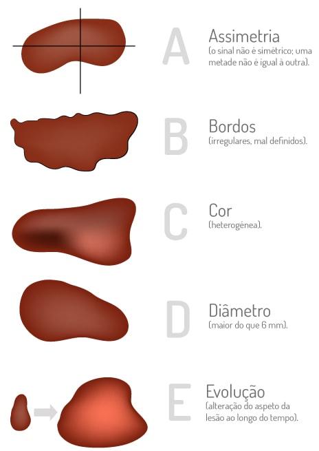 Imagem melanoma