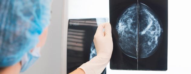 Diagnostico Cancro da Mama - Cancro Online