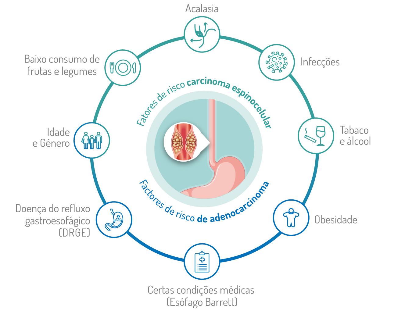 cancro do esófago - fatores de risco