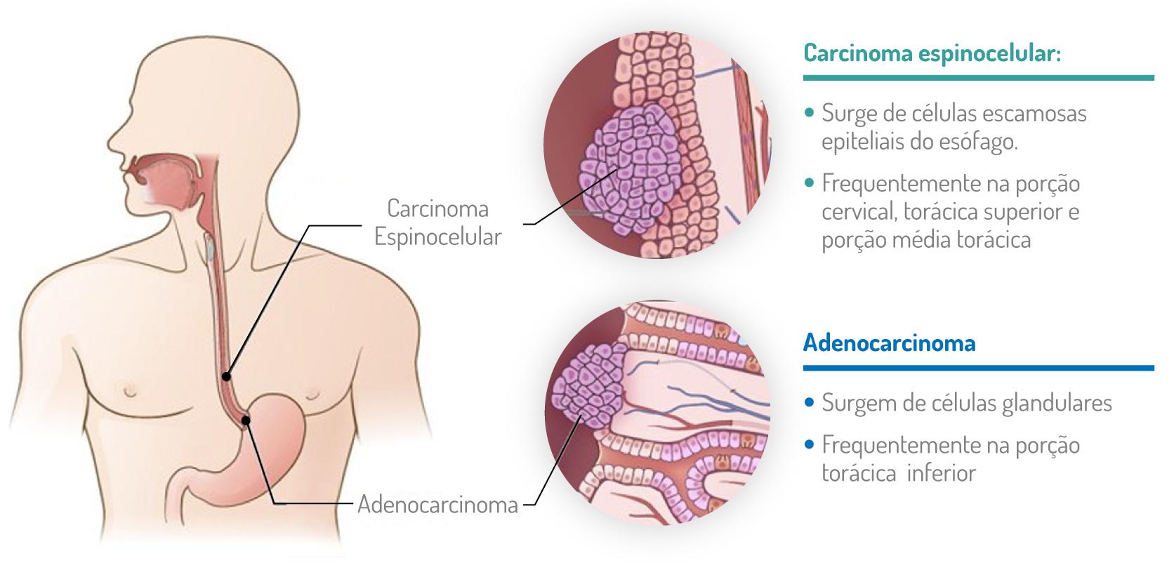 estadiamento cancro do esófago