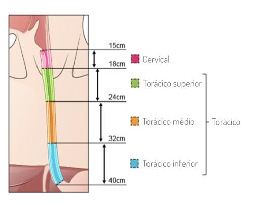 Localização do tumor no esófago